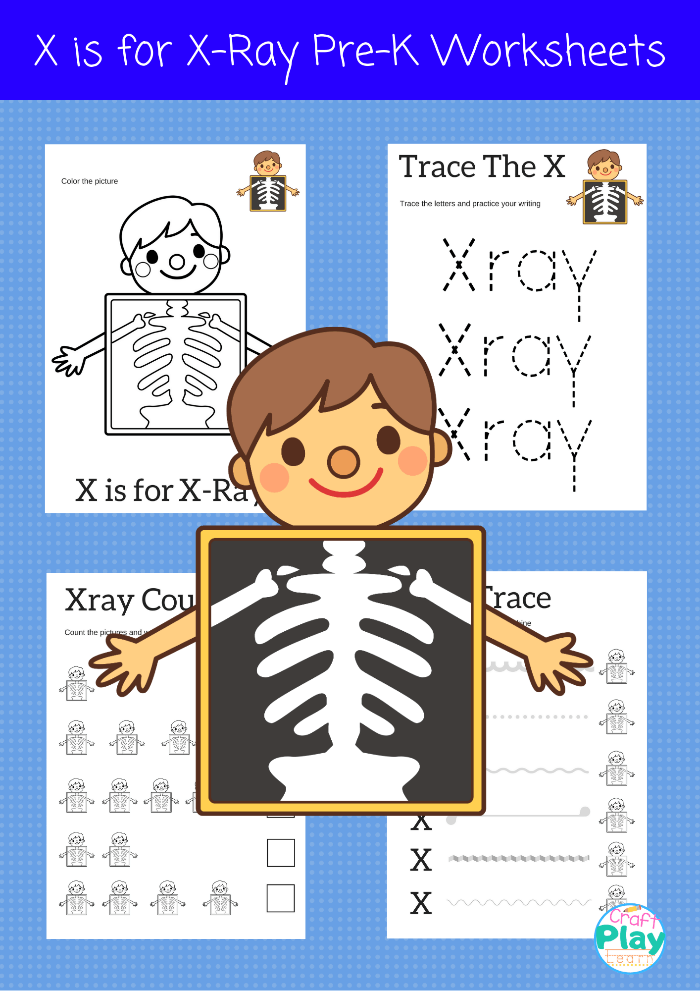 Letter X Worksheets For Preschool Kids - Craft Play Learn